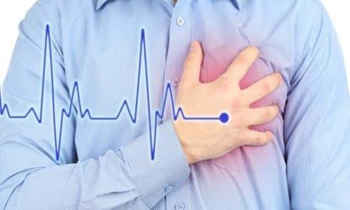 Боль слева в боку под ребрами может быть сигналом такой патологией, как инфаркт или поражение сердечной мышцы