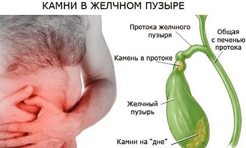 Лекарство не применяют при желчнокаменной болезни