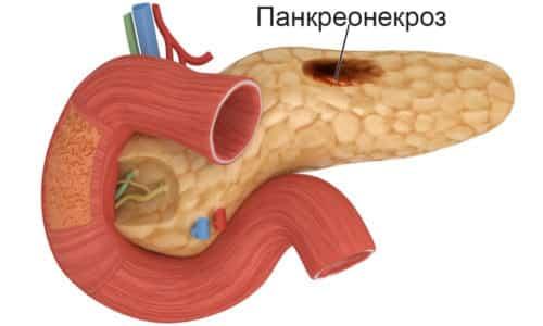Постоянное совмещение с этанолом может привести к панкреонекрозу