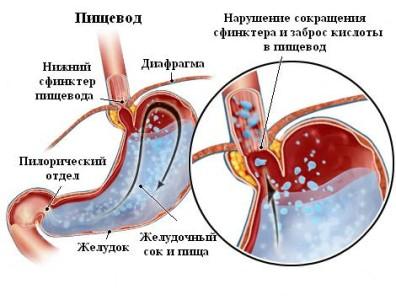 Анатомическое строение пищевода обусловлено его функцией - служить промежуточным этапом для транспортировки пищевого кома из ротовой полости в желудок