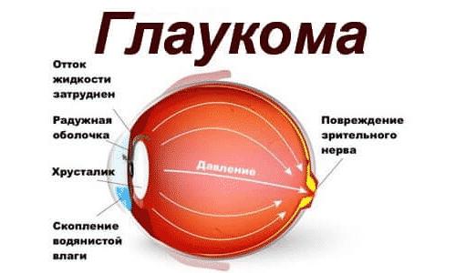 Лекарственное средство запрещено применять для лечения пациентов, страдающих от глаукомы закрытоугольного типа