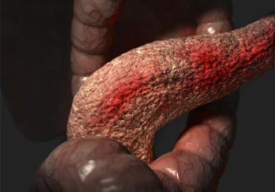 При нарушении функций повышается давление сока панкреатического типа в протоках, что вызывает боли