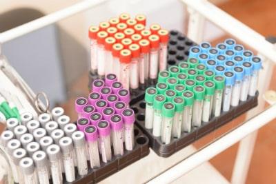 Биохимические анализы на дисбактериоз проводятся быстрее, чем бактериологический посев
