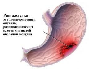 Симптомы рака на ранних стадиях представлены снижением аппетита, отвращением к мясу, тошнотой, вздутием живота, снижением массы тела, недомоганием, слабостью, нарушением глотания