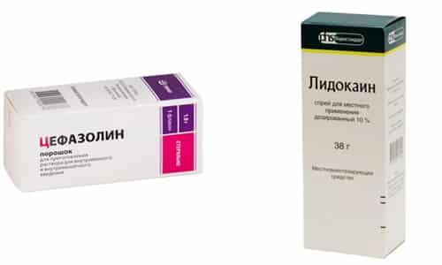 При парентеральном применении антибиотиков часто дополнительно назначают средства обезболивающего действия Лидокаин и Цефазолин