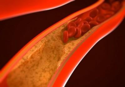 Компрессия геморроидальных вен обеспечивает возникновение застойных зон кровяного потока и области кавернозных тканей