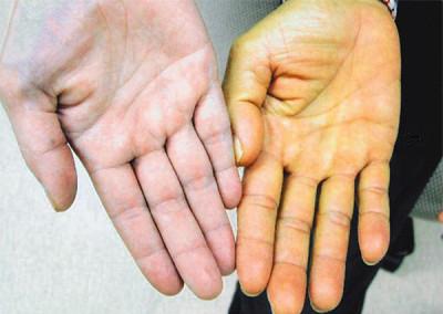 Если кожные покровы поменяли свой оттенок, появилась бледность, желтушность или синюшный оттенок, то это один из симптомом заболевания поджелудочной железы