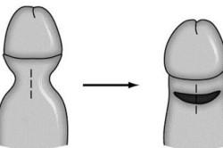 Лечение фимоза у мужчин