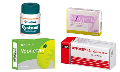 Мочегонные средства используют при комплексном лечении цистита, распространенные варианты в форме таблеток: Монурель, Уролесан, Цистон, Фуросемид
