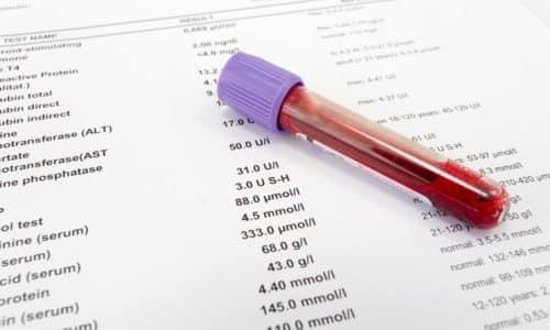 Самым информативным является биохимический анализ крови