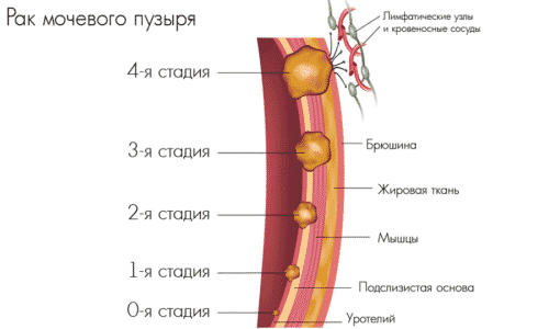 Рак мочевого пузыря способствуют возникновению следующих симптомов: гематурии, боли внизу живота и области почек, рези во время выделения мочи, отечность нижних конечностей