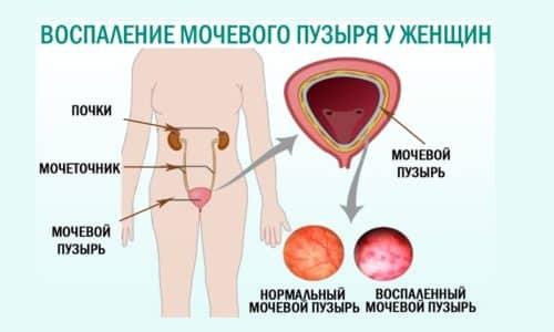 Воспаление мочевого пузыря является распространенной патологией, особенно если заболевание выступает в качестве симптома инфекции, передающейся половым путем