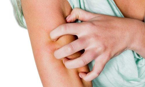 В некоторых случаях прием лекарства вызывает аллергическую реакцию