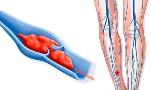 Не рекомендуется назначать препарат Амбен людям преклонного возраста из-за повышенного риска тромбозов