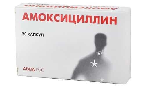 Амоксициллин принимают при бронхите и пневмонии