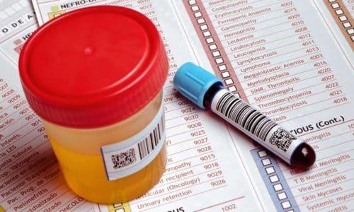 Для постановки диагноза потребуются общие клинические анализы крови и мочи
