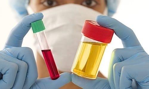 Для выявления гормонального воспаления мочевого пузыря нужно сдать на анализ кровь и мочу