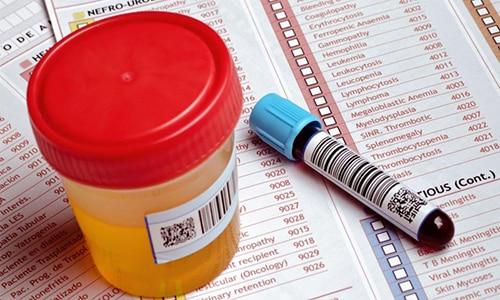 При отказе поджелудочной применяют биохимические анализы крови и мочи