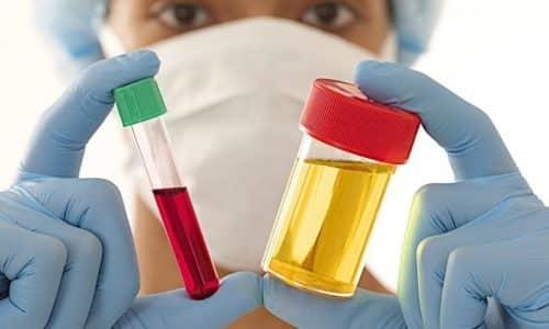Своевременная диагностика позволяет назначить правильное лечение и избежать тяжелых последствий мочеполовых болезней