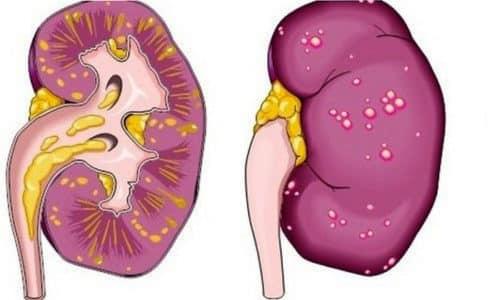 Боль может возникнуть при патологии мочевыделительной системы, например, при почечной колике