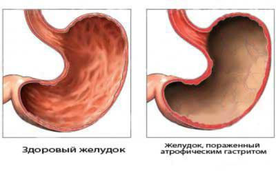 Гастродуоденит - это весьма серьезное заболевание желудочно-кишечного тракта, при наличии которого развивается воспалительный процесс не только в оболочке желудка, но и в двенадцатиперстной кишке