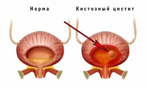 Кистозный цистит - осложнение хронического воспаления органов мочевыделительной системы