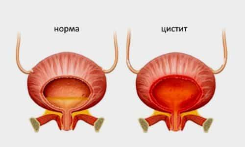 При цистите болит мочевой пузырь у мужчины по причине воспаления