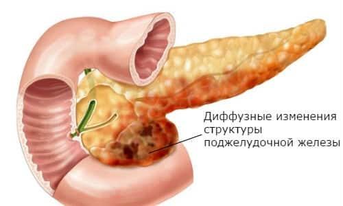 Диффузно-неоднородная структура поджелудочной железы свидетельствует о наличии заболевания пищеварительного тракта