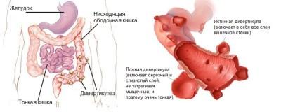 Длительное лежание провоцирует воспалительный процесс или дивертикулит сигмовидной кишки