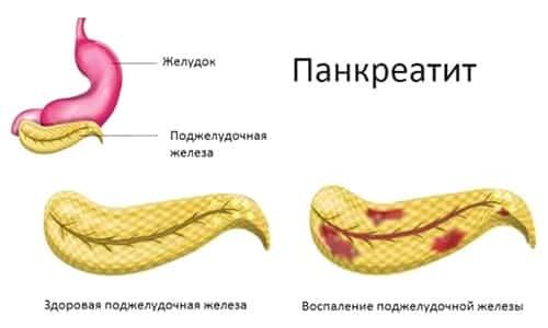Дротаверин назначается при хроническом панкреатите и в случае обострения воспалительного процесса в поджелудочной железе