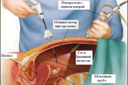 Схема эндоскопической хирургии