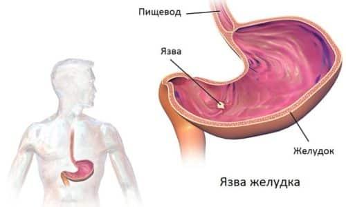 Если не обращаться своевременно к гастроэнтерологу при появлении неприятных симптомов, то возможны осложнения в виде язвы желудка