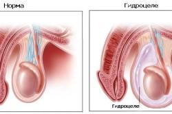 Гидрцеле - осложнение после операции на варикоцеле