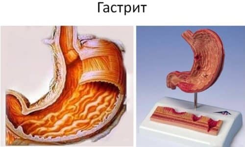 При поверхностном гастрите желудок не будет работать в полную силу, и усвояемость питательных веществ будет снижена