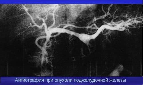 Селективная ангиография - это рентгеноконтрастный метод, который позволяет визуализировать сосудистый рисунок поджелудочной железы и кровоснабжение органа