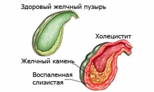 Холецистит представляет собой поражение желчного пузыря воспалительного типа