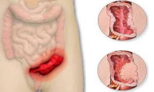 Язвенный сигмоидит сменяет эрозивный, на месте эрозий возникают более глубокие дефекты тканей, называемые язвами