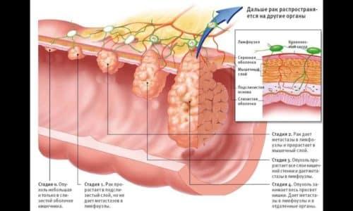 Раком прямой кишки называется злокачественная опухоль, которая образуется в конечном отделе толстого кишечника. Очень часто это грозное заболевание протекает под маской геморроя