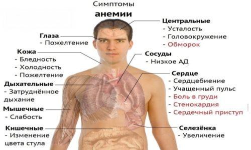 При длительном дисбактериозе возможно развитие анемии