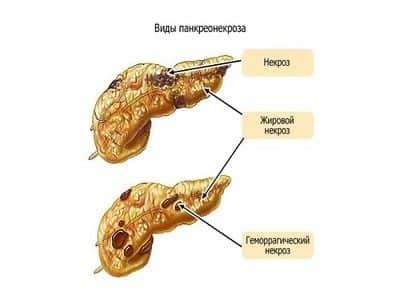 Стадия гнойных осложнений проявляется присоединением патогенной микрофлоры к очагам некроза и проявлением гнойной интоксикации разной степени