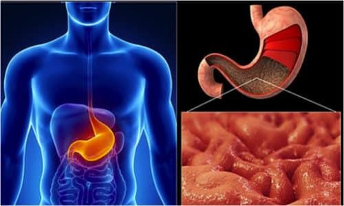 При хроническом неатрофическом гастрите слизистая оболочка желудка поражаеется дисгенераторно, то есть нарушается процесс ее восстановления регенерацией клеток эпителиального слоя