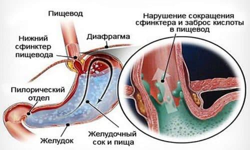 Дистальный рефлюкс эзофагит возникает, когда при раздраженном пищеводе ткани органа отекают. Слизистые оболочки начинают воспаляться