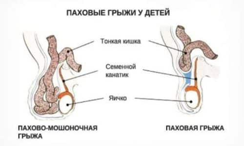 В пахово-мошоночной грыжи, припухлость представляет собой вытянутую форму, а ее выпуклая часть существенно вырастает в размерах