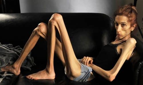 Основной опасностью гельминтов является то, что они отнимают часть питательных веществ.В результате отмечается потеря веса, анемия и тяжелая форма истощения - кахексия