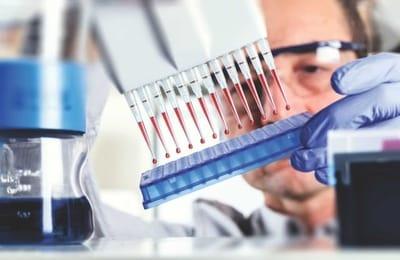Необходимо сдать общий анализ крови, а после проводится и биохимический анализ крови