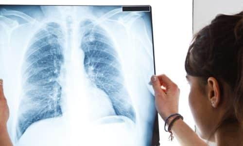 Больным часто предлагают пройти рентген для уточнения диагноза
