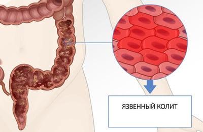 Язвенный колит - это заболевание, при котором воспаляется слизистая оболочка кишечника с последующим образованием язв и некрозов