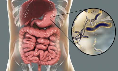 Влияет на возникновение поверхностного гастрита и хеликобактер пилори. Эта бактерия передается через слюну или при пользовании предметами больного
