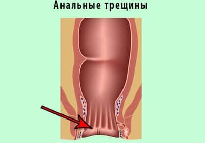 Большая нагрузка на стенки кишечника вызывает повышенное давление на слизистую оболочку прямой кишки, что приводит к возникновению микротрещин