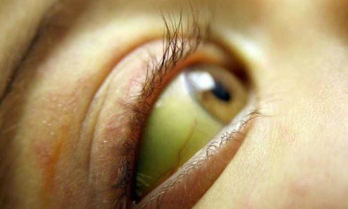 При постановке диагноза специалисты используют и сопутствующие признаки в виде желтухи